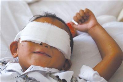 昨日,山西省眼科医院病房,小斌躺在病床上,他还不知道自己已经失去了双眼。新京报记者 侯少卿 摄