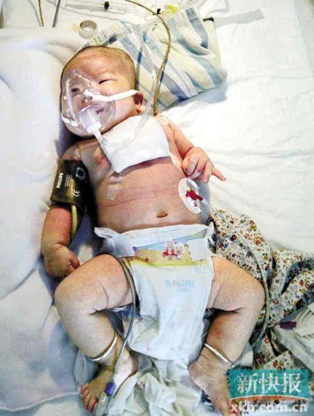 被刺伤的婴儿胸部受伤,在医院接受治疗。新快报记者毕志毅/摄