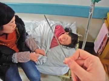 经过手术,小乐眼中的锉刀已取出。省医院供图