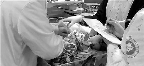 医生全力救治女婴。