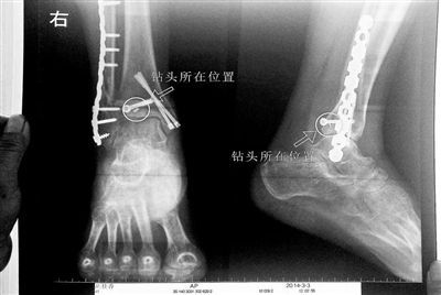 胡女士的腿部X光图