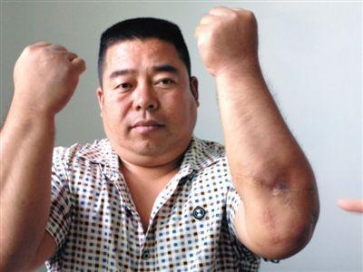 2008年,王金刚被素未谋面的侯志强砍伤。