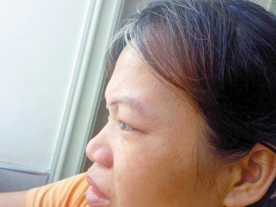 讲起目前的艰辛,李摄森的三嫂眼泛泪光