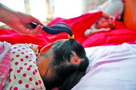 小娟的后脑勺红斑处的头发已经明显脱落 本组图片由记者 张路桥 摄