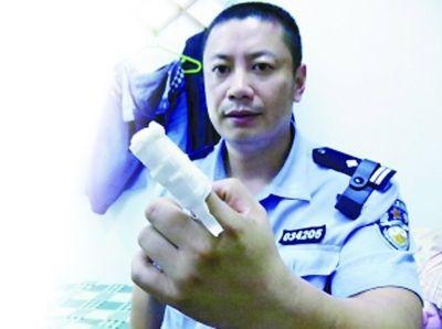 民警屈延东手指被女子咬伤。任中华 摄