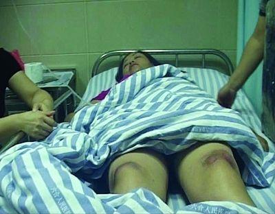被撞受伤的骑车人在医院治疗中。叶方龙 摄
