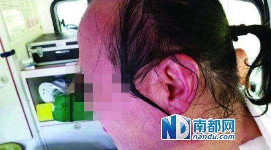 涉事教师遭热水泼脸后的照片。